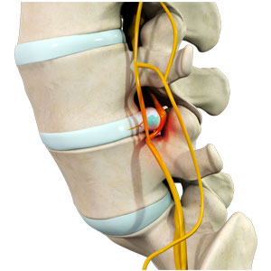 Lumbar Degenerative Problems